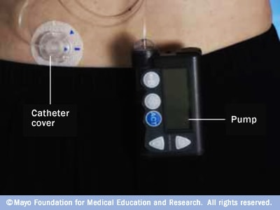 Illustration showing an insulin pump