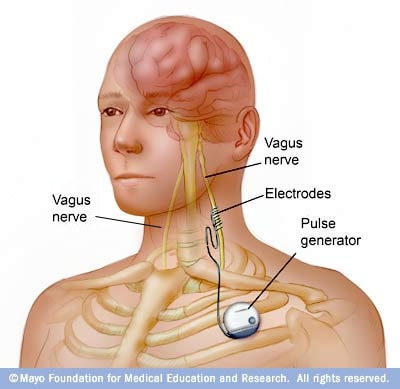 Illustration of vagus nerve stimulation pulse generator