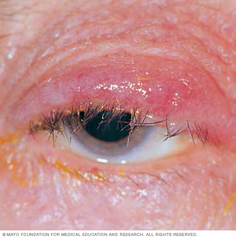 Photograph showing blepharitis