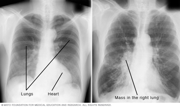 Medical image of chest X-rays