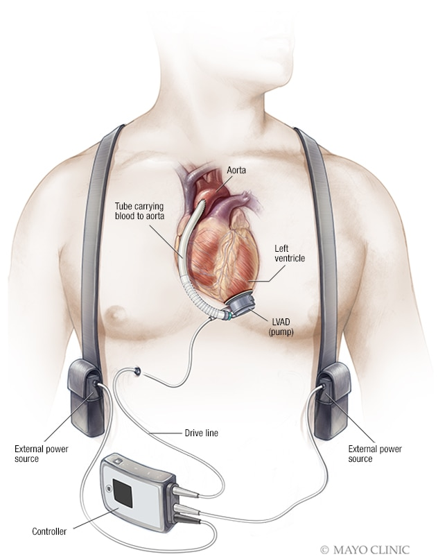 Illustration of a left ventricular assist device (LVAD)