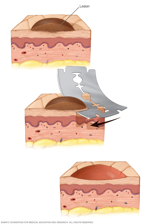 Illustration showing shave biopsy of the skin