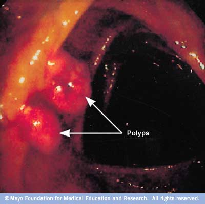 Image showing small colon polyps