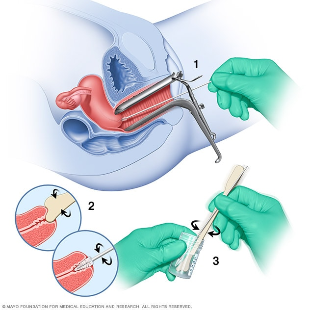 Illustration showing Pap test