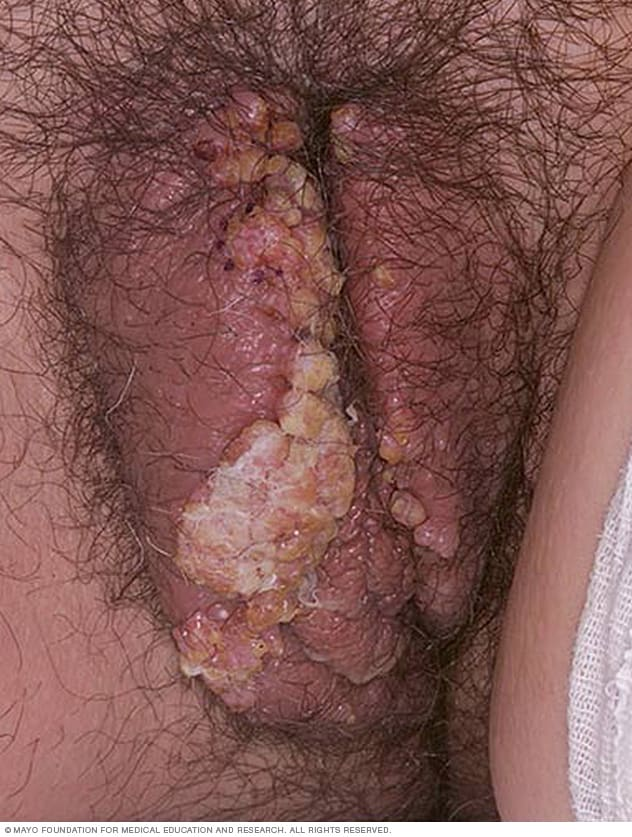 Photo of female genital warts