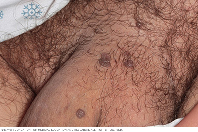 Photo of male genital warts