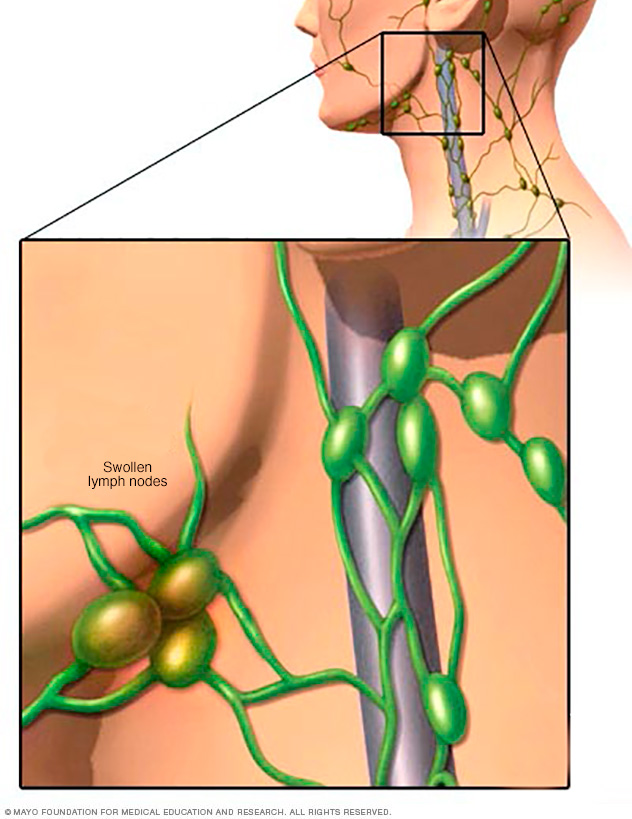 Image showing swollen lymph nodes