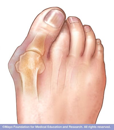 Illustration of bunion