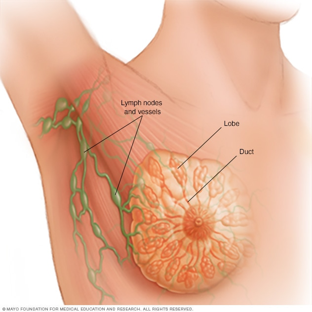 Illustration of breast, including lymph nodes, lobules and ducts