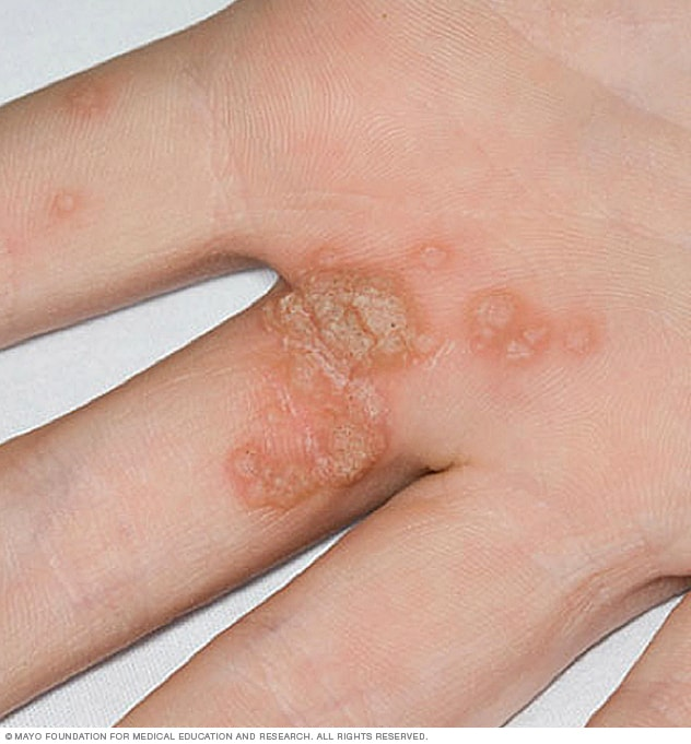 Photo of common warts