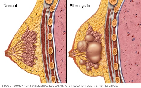 Illustration showing normal breast vs. fibrocystic breast