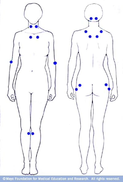 Illustration locating the 18 tender points associated with fibromyalgia