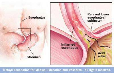 Illustration showing how GERD occurs in the esophagus