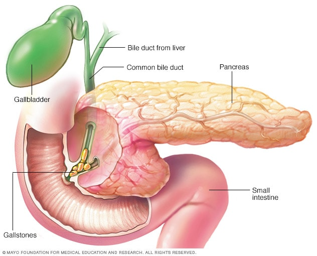 Illustration showing pancreatitis caused by gallstones