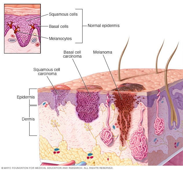 Illustration showing where skin cancer develops