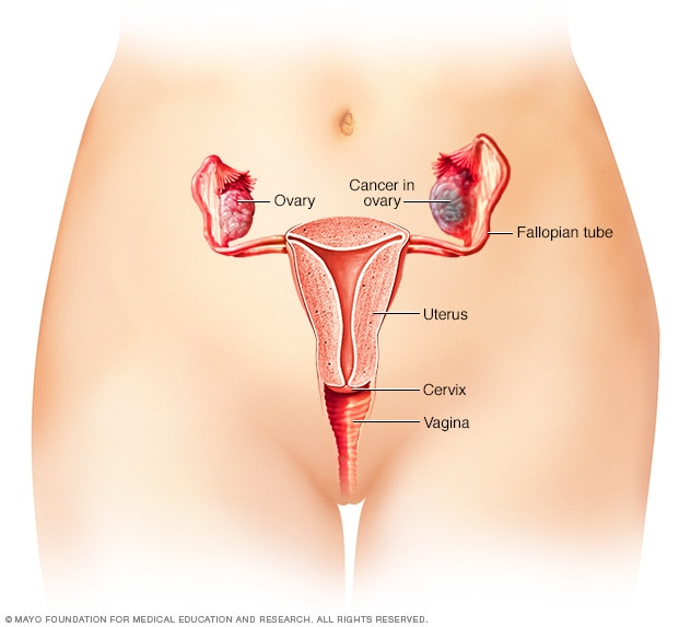 Illustration of ovarian cancer