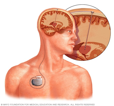 Illustration of deep brain stimulation