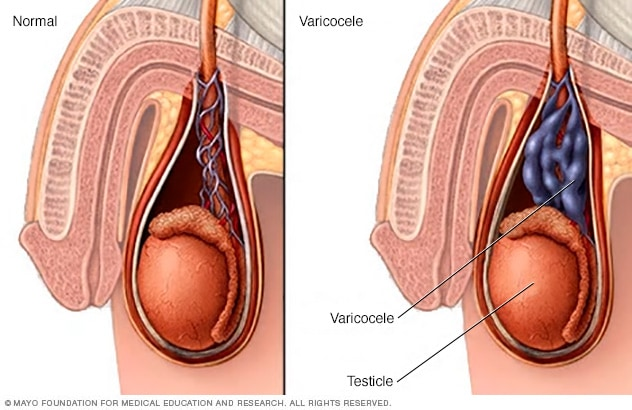 Illustration of varicocele