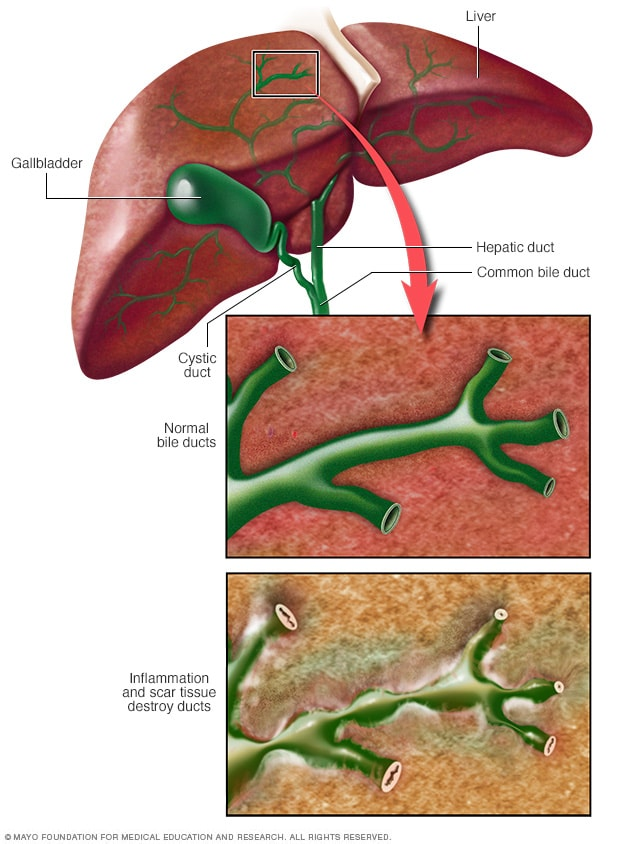 Illustration of bile duct damage