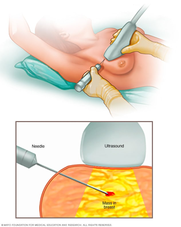 Illustration showing ultrasound-guided breast biopsy