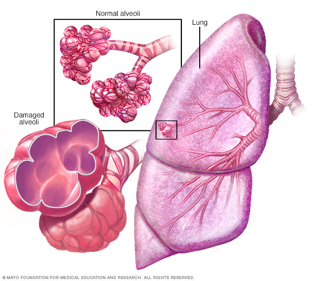 Illustration showing normal tissue and tissue damaged by emphysema