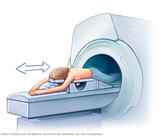 Illustration showing a woman undergoing breast MRI