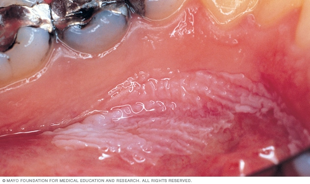 Photo of leukoplakia