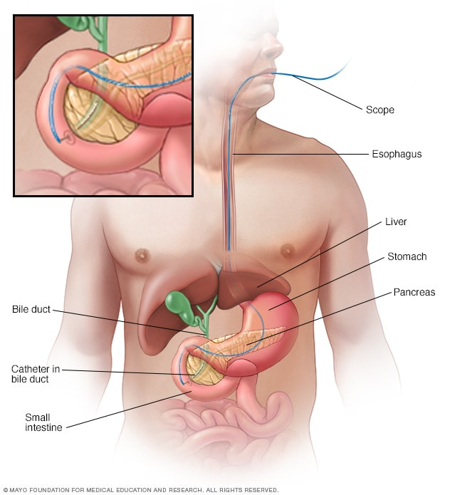 Illustration of ERCP procedure