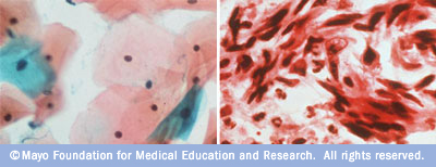 Images showing normal and abnormal cervical cells