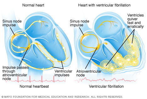 Illustration showing ventricular fibrillation