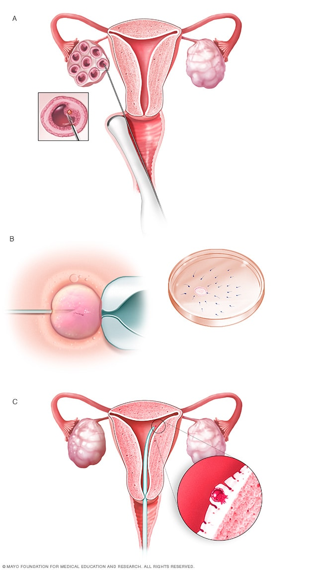 Illustration showing in vitro fertilization