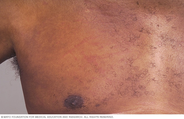 Image showing hives on dark skin