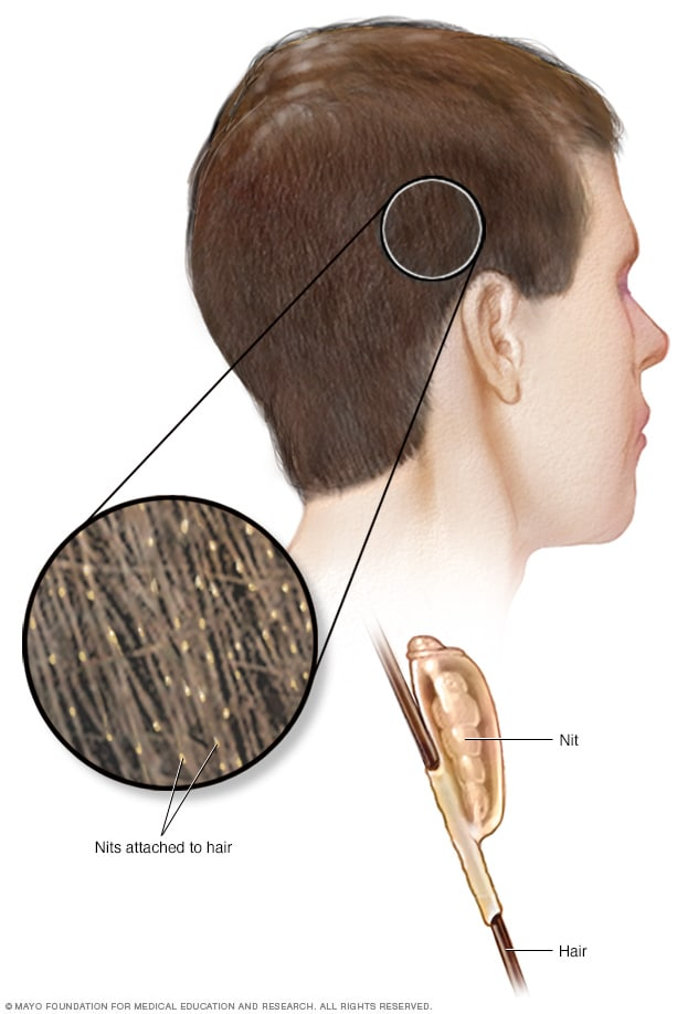 Illustration showing nits on hair