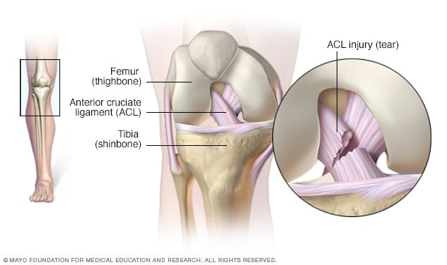 Illustration of ACL injury