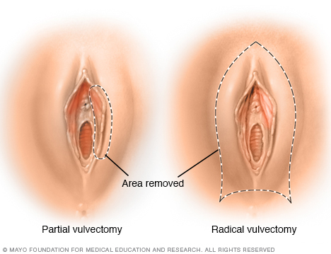 Illustration showing partial vulvectomy and radical vulvectomy