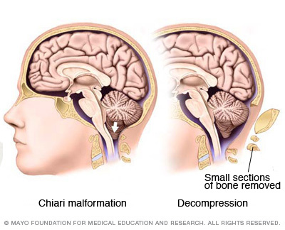 Image of Chiari malformation