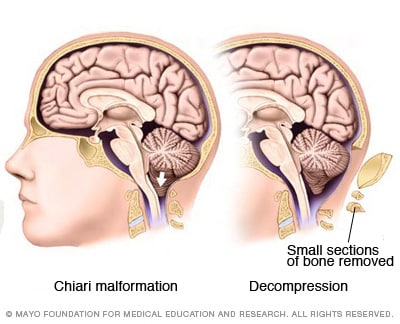 overview - chiari malformation - mayo clinic, Skeleton