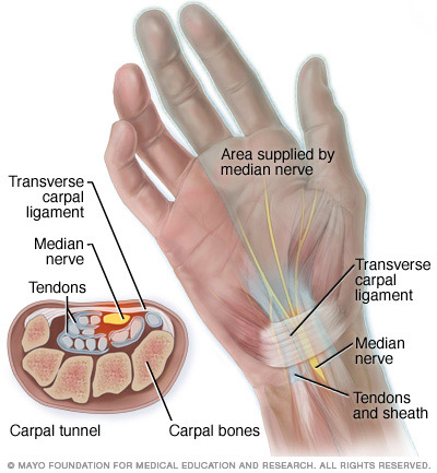 Illustration of carpal tunnel anatomy