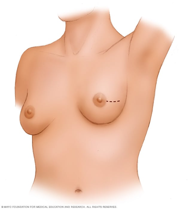 Images showing lumpectomy