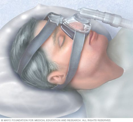 Illustration showing continuous positive airway pressure (CPAP) mask