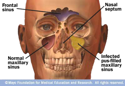 Illustration showing normal and infected sinuses
