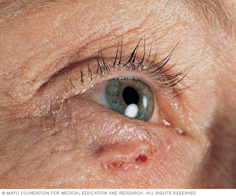 Photograph of basal cell carcinoma
