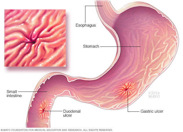 Illustration showing ulcers