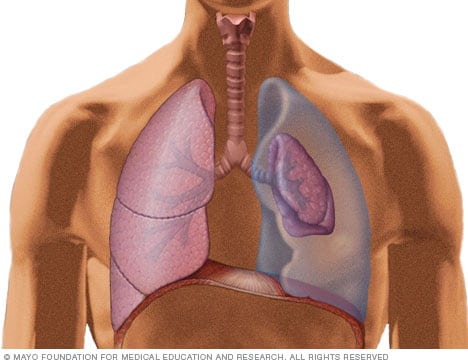 Illustration showing collapsed and normal lung