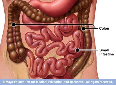 Illustration showing colon and small intestine