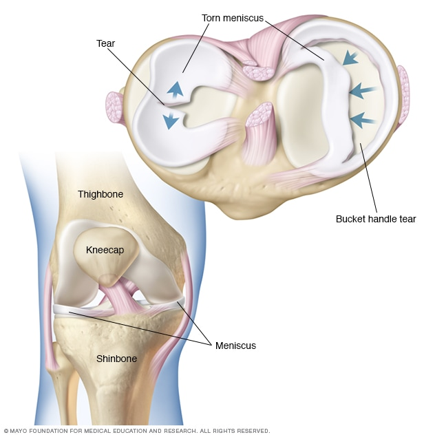 Image showing knee anatomy and torn meniscus