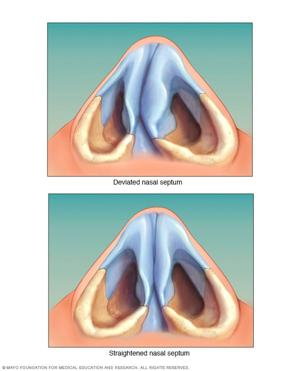 Illustration showing deviated septum
