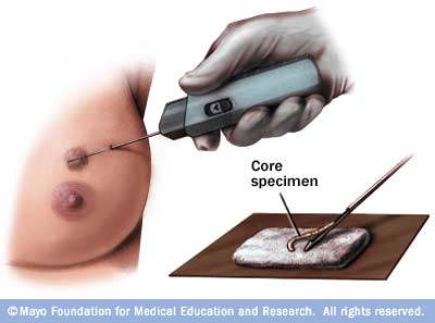 Illustration of core needle biopsy for breast cancer