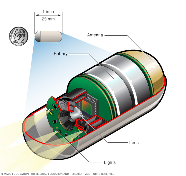 Illustration showing a capsule endoscopy camera