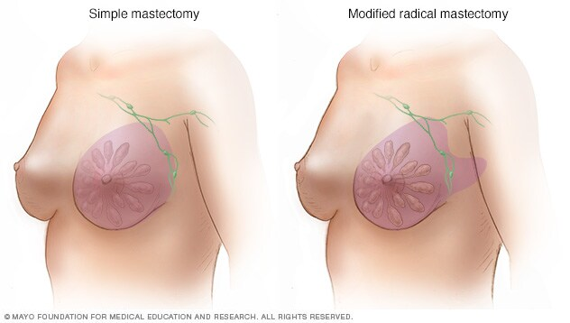 Images of simple and modified radical mastectomy